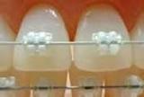 練馬区 矯正歯科 ジルコニアブラケット
