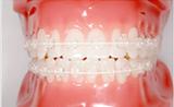 練馬区 矯正歯科 サファイヤブラケット